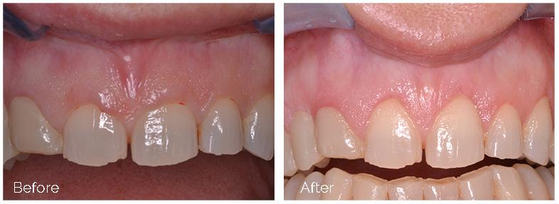 ann kearney astolfi bethlehem PA smile gallery Before and After Esthetic Crown Lengthening