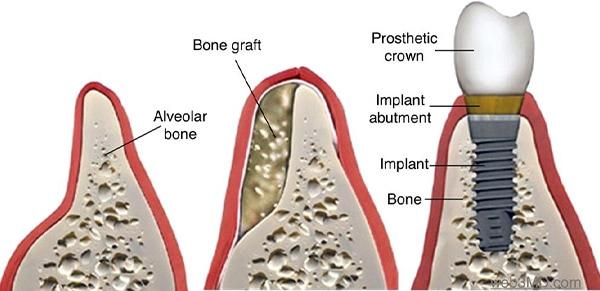 ann kearney astolfi bethlehem PA services bone grafting